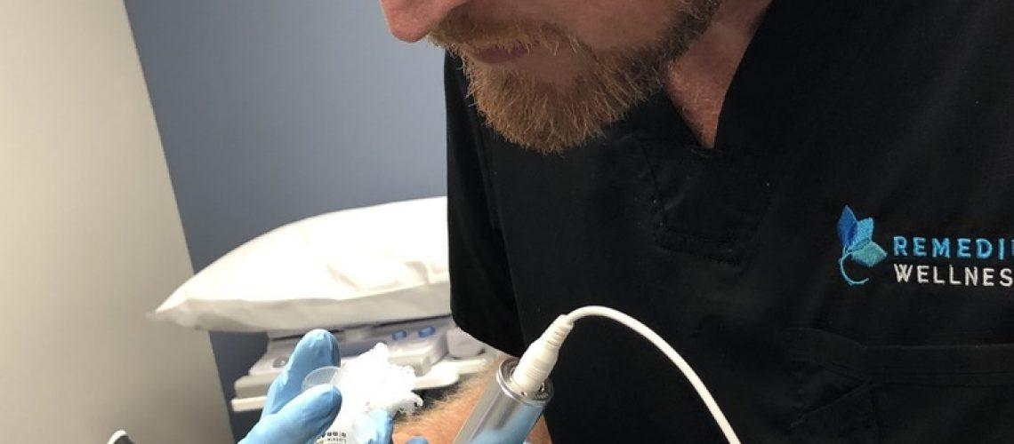 PRP and Microneedling Hair Procedure